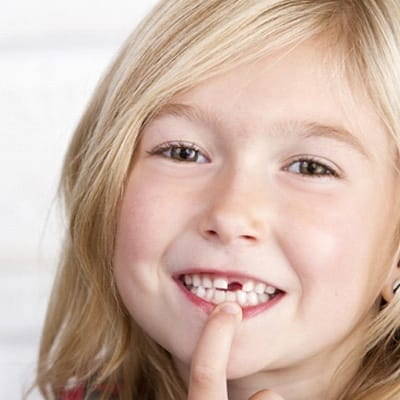 A young girl smiling and pointing at the area of her missing front tooth